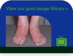 View our gout image library